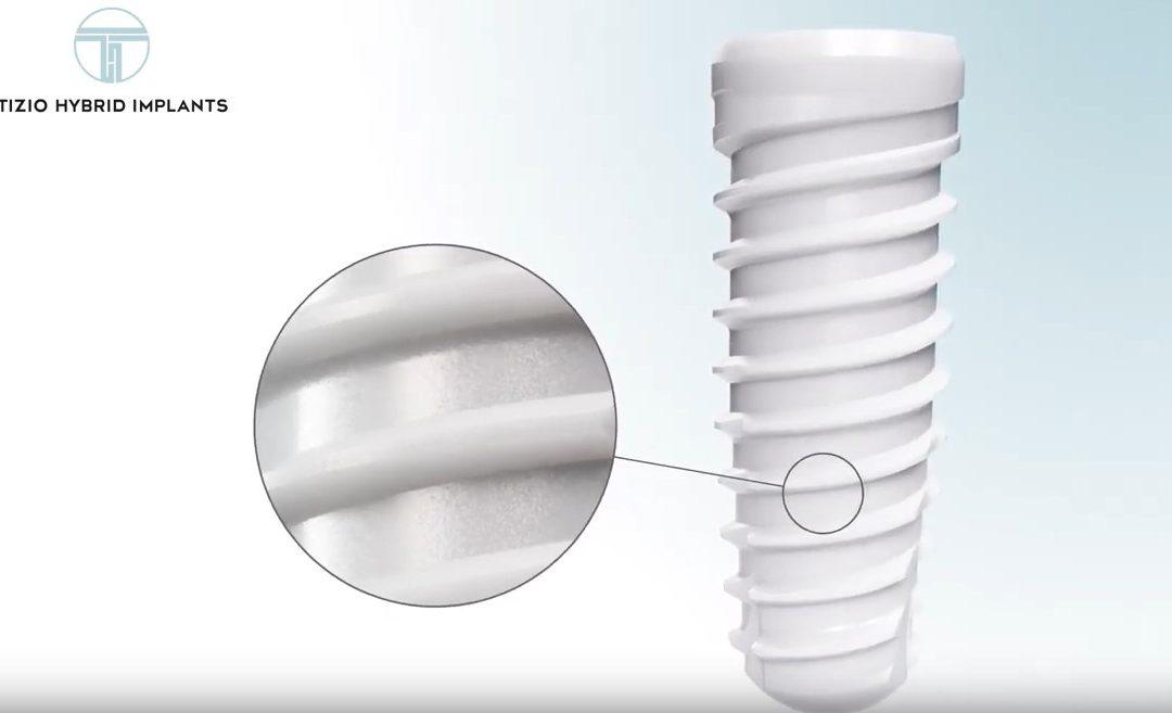Ein Hybrid-Implantat – Was ist das eigentlich?